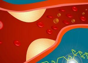 Атеросклероз лечение диетой